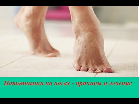 Натоптыши на ногах   причины и лечение