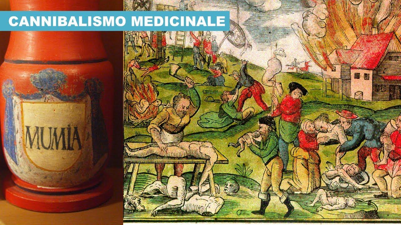 """Il CANNIBALISMO """"Medicinale"""" era comunissimo in EUROPA fino al XVII Secolo"""