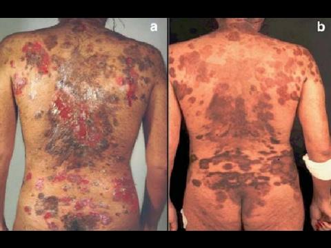 pemphigus vulgaris || pemphigoid lesion || pemphigus diagnosis, Skeleton