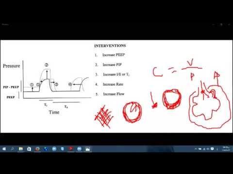 mechanical ventilation principles 1