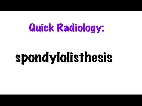 QUICK RADIOLOGY: Radiologic findings of Spondylolisthesis