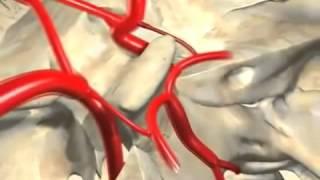 Vasos cerebrales - Universidad de Granada - TECNOLOGIAS RADIOLÓGICAS