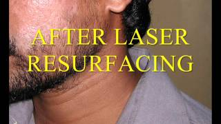 LASER TREATMENT FOR ACNE / PIMPLE SCARS Thumbnail