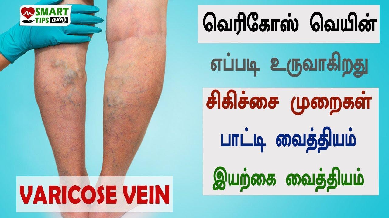 Împachetări abdominale pentru varice