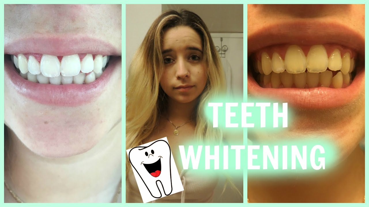 Teeth Whitening Tutorial Philips Zoom Day White Youtube