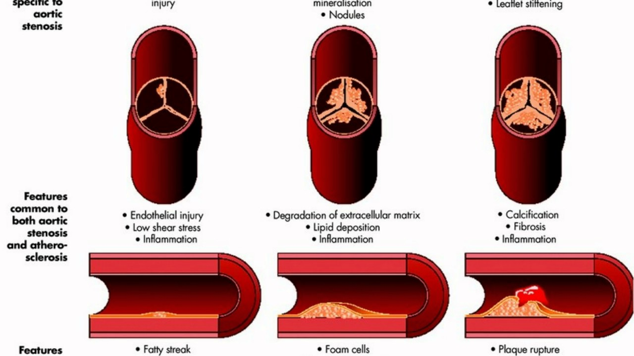 Difference Between Aortic Sclerosis and Aortic Stenosis ...