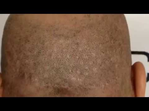 Scalp Micropigmentation - How much does hair restoration cost? Check ...