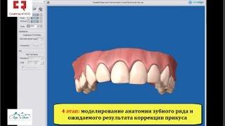 Исправление прикуса без брекетов с использованием съемной капы для выравнивания зубов (элайнера)(, 2017-01-02T10:57:18.000Z)