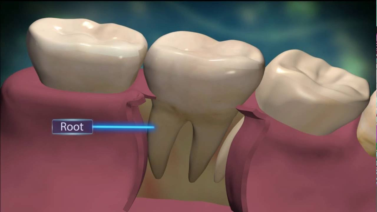The Structure Of Teeth In 3d Youtube