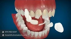 Cosmetic Dentistry Procedures - Dental Animation