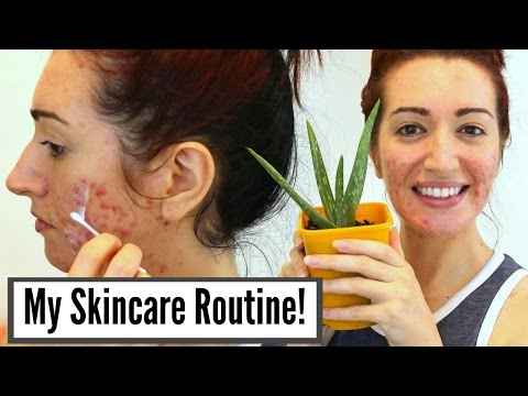 My Current Skincare Routine For Severe Acne & Scarring // Oily Skin Treatments