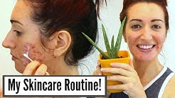 hqdefault - Acnefree 24/7 Severe Acne Wash Reviews