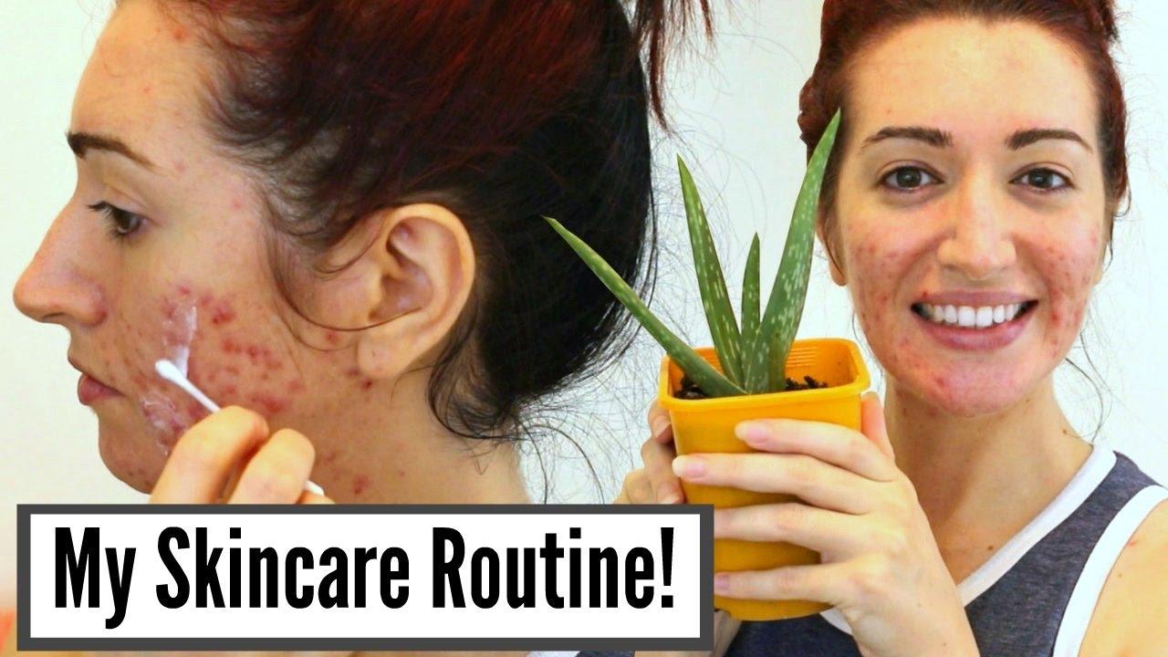 Hasil gambar untuk Acne - Treatment Regime for Severe Acne