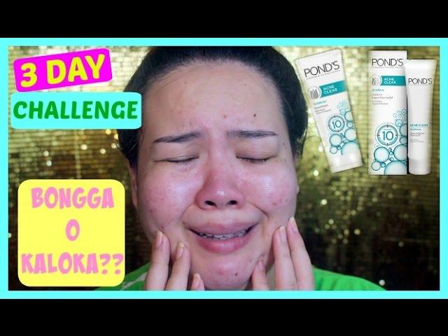 Pond S Acne Clear 3 Day Challenge On Acne Prone Skin Bongga O Kaloka Youtube