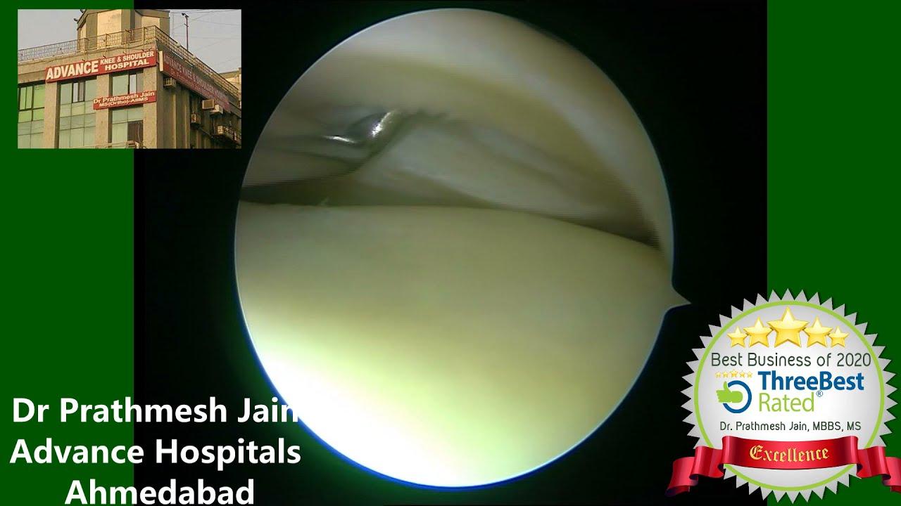 Lateral Meniscus Repair Surgical video in Hindi. मेनिसकस रिपेयर कर के घुटने को  बचाया जा सकता है