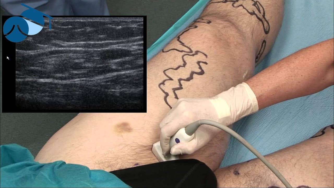 Preoperative Marking Of A Borderline Atrophic Great Saphenous Vein