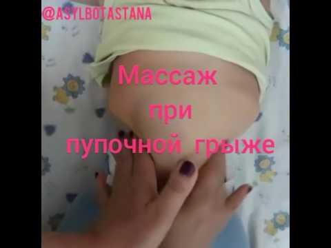 массаж пупка при грыже новорожденных