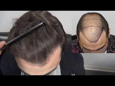 Hair Transplant in 20s? | 3,000 Graft Result | Feller & Bloxham Medical, NY, NYC, Long Island