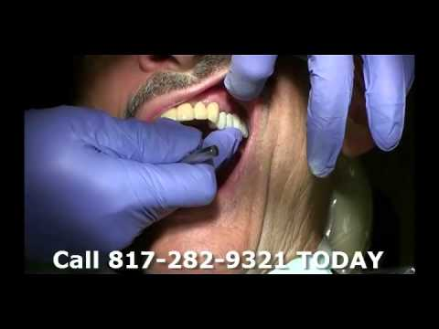 Part 13 Kyle Eberlein DDS Midcities Dental Temporary Bridge Fitted To Mouth