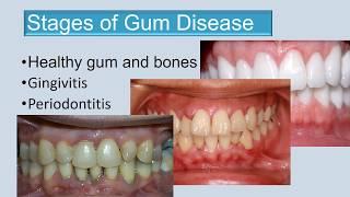 Stages of gum disease final edit 3