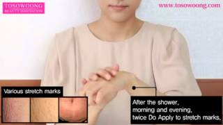 [TOSOWOONG]Stretch-mark cream 150g/Pregnancy/adolescent stretch marks care/cosmetics Thumbnail