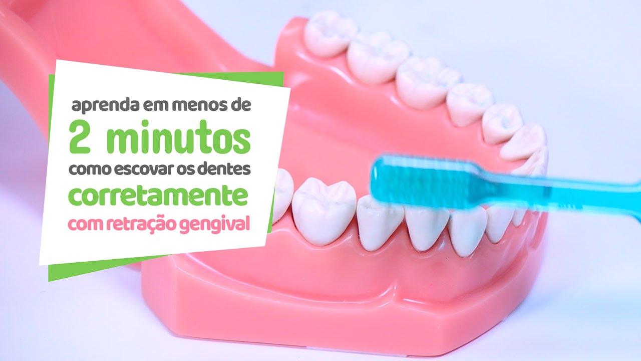 49e3b1a26 Como escovar os dentes com retração gengival - Cir Hospital Odontológico