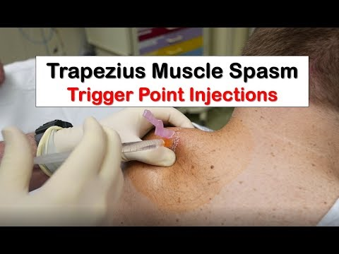 Trapezius Muscle Spasm Trigger Point Injection