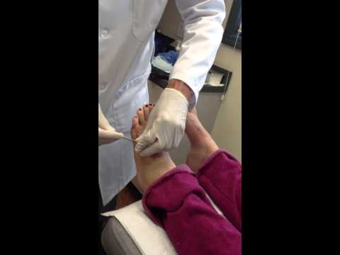 5th Metatarsal Pin Removal