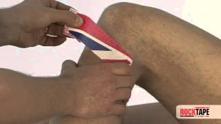 Rocktape - Tweak Taping for outer knee (fibula head)
