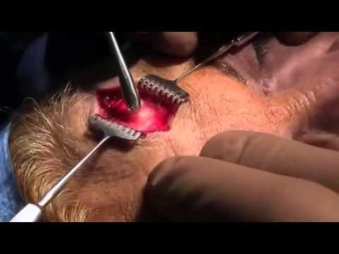 Операция. Удаление остеомы лобной кости.