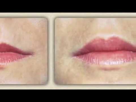 ДО и ПОСЛЕ: Увеличение губ гиалуроновой кислотой. фото