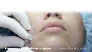 Заполнение носогубных морщин филлером Dermafill Volume мастер класс от Петровича А В
