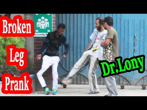 broken leg | bone fracture | broken bones | funny pranks prank videos Dr | comedy video |