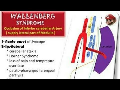 Lateral medullary syndrome / wallenberg syndrome and trautmann ...