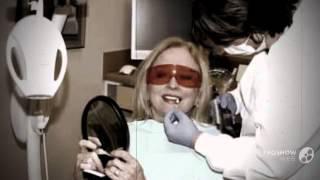 отбеливание зубов опалесценс отзывы   - белые зубы в домашних условиях