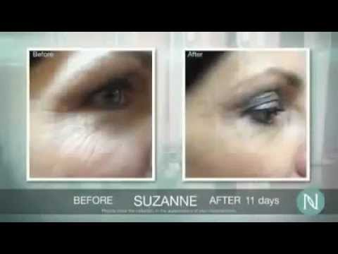 The Nerium Experience: What is NeriumAD Age Defying Treatment