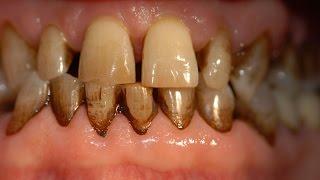 Alimentos que manchan los dientes. T.47