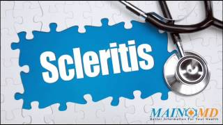 Scleritis ¦ Treatment and Symptoms
