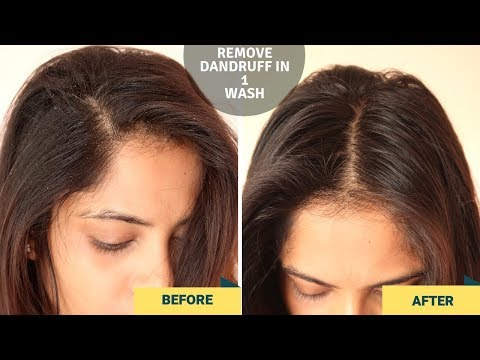 how-to-remove-dandruff-in-1-wash-/live-result-/100%-natural-&-effective