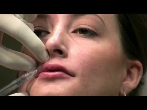 Ювидерм Ультра — увеличение губ инъекциями Ювидерма