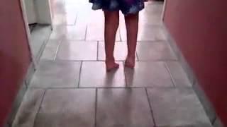 Pé Torto Congênito Eqüino Maria Lara 5 anos