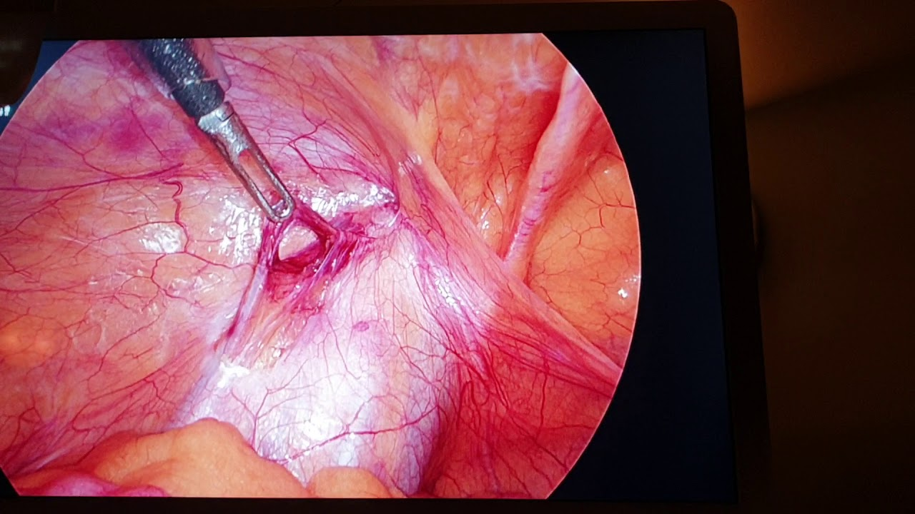 Dr Vipra Shree-Tips and tricks of Laparoscopic Testicular ...