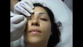 Tatuaj ochi make up artist Zarescu Dan Clinica Slimart micropigmentare contur ochi