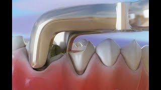 帕尔迪纳斯牙科诊所的三维视频( http://bit.ly/1AWGytT ),展示了拔牙的过程,以及之后为了防止牙槽重新吸收的治疗方法。此视频展示了2颗牙由于龋...