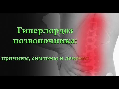 Остеохондроз, здоровье позвоночника