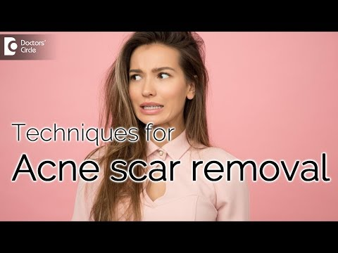 is-it-possible-to-remove-acne-scars-permanently?---dr.-arti-priya-r