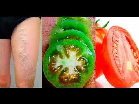 Se puede eliminar las varices de forma natural