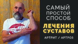 видео Лечение артроза