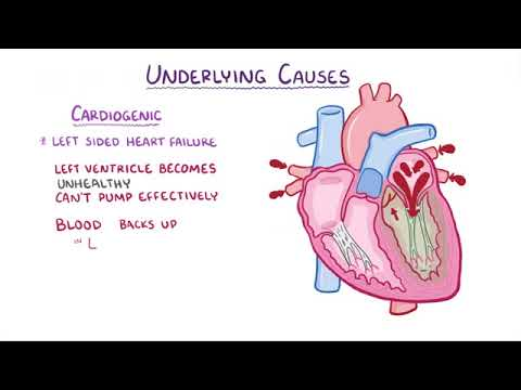Pulmonary Edema causes, symptoms, diagnosis, treatment, pathology