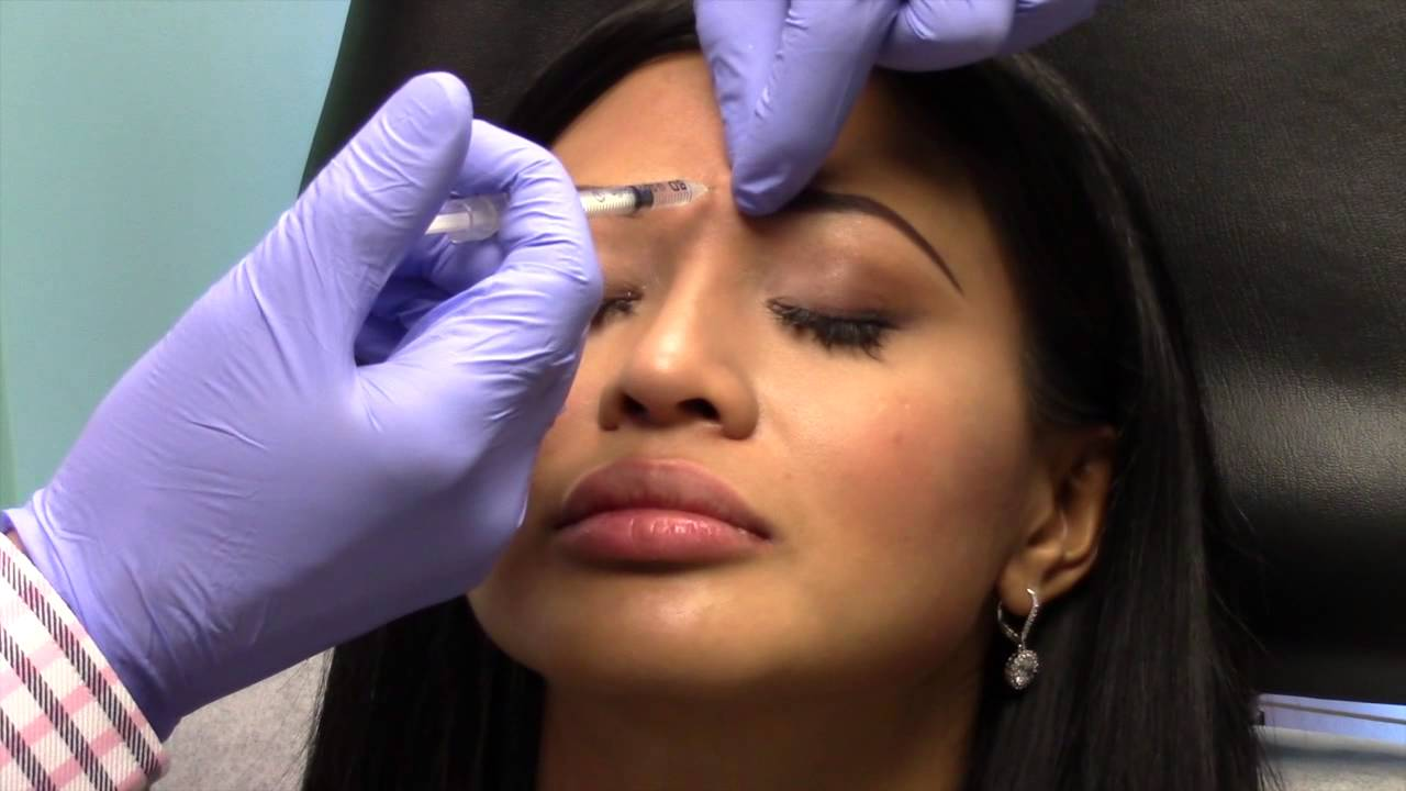 Botox Prevention Lines Wrinkles Young People